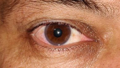 Photo of Protection of  Eyes Important during  COVID-19 Pandemic