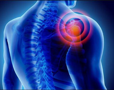 कंधे का दर्द