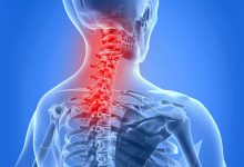 Photo of Neck Pain :  Stay Safe From SPONDYLITIS…